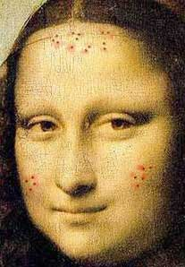 mona lisa zits sm Beyond Zits: Acne and Anxiety Disorders Part 1