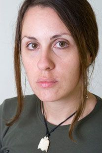 adult-acne-sm
